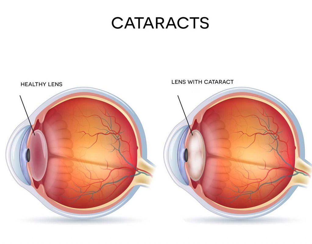 A healthy lens and a lens with cataract