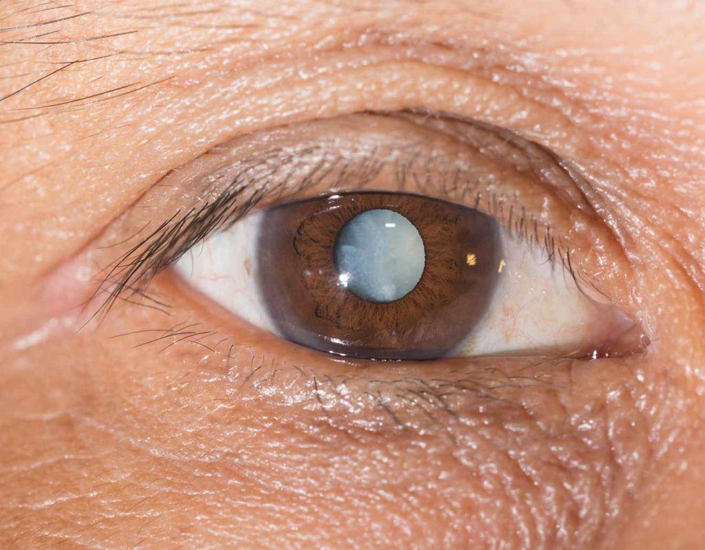 Mature cataract white pupil