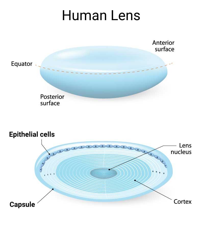 lens anatomy PCO